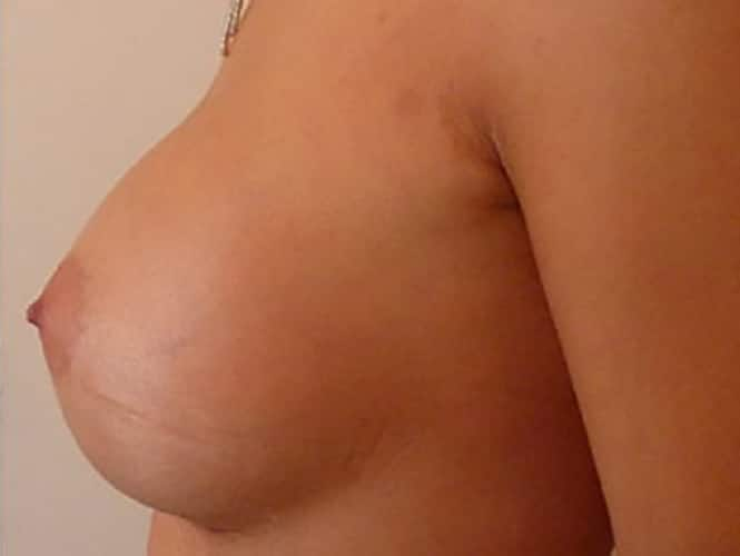 Patient Photo After Breast Implants Left