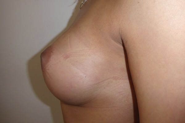 After Breast Implants Left Side