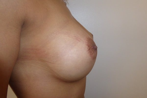 After Breast Implants Right Side