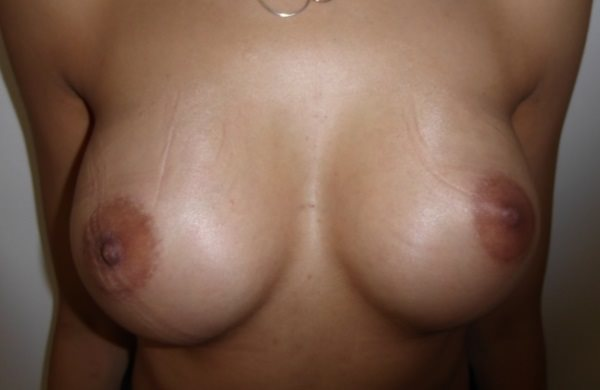 Harley Breast Patient After Implants