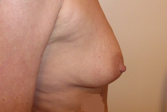 Before 300 cc Implants Right Side