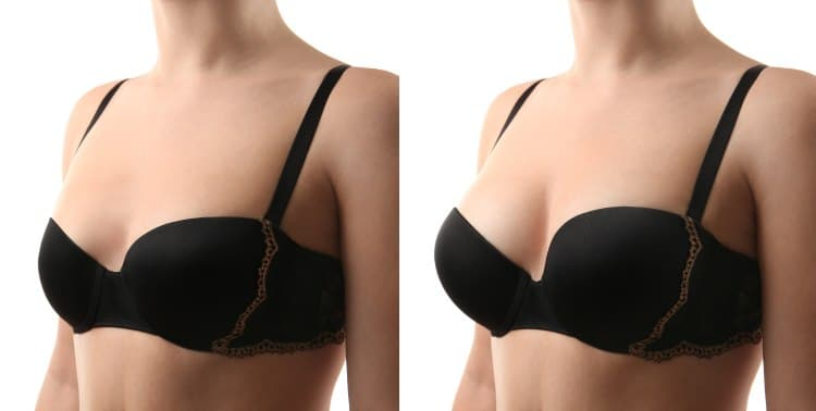 Fat Transfer To Breast  Breast Fat Transfer  No Implants -5316