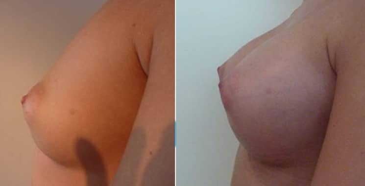 Before and After 300 ml Breast Implants Left Side