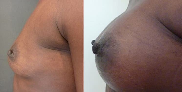 Before and After 400 ml Breast Implants Left Side
