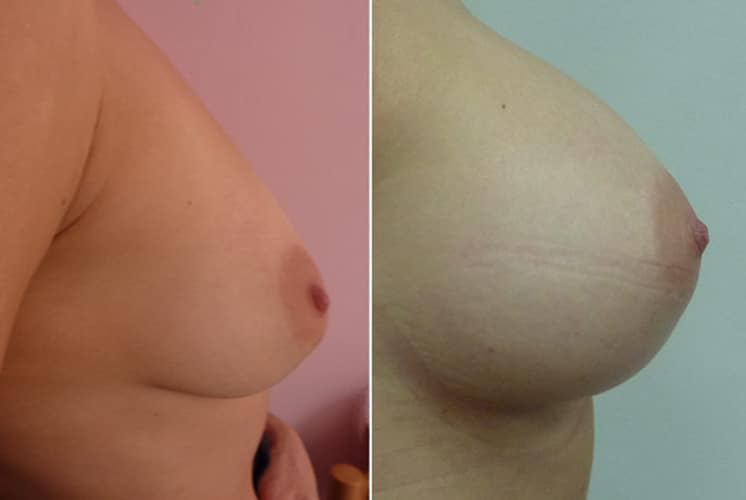 Before and After 350 ml Breast Implants Right Side