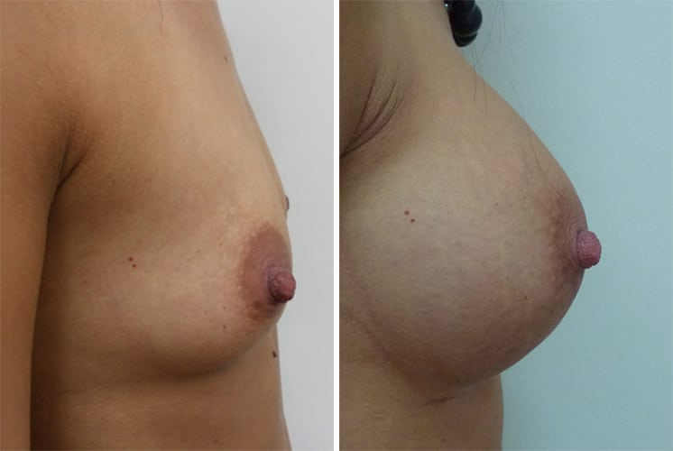 Before and After 320 ml Breast Implants