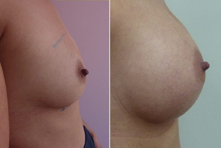 Before and After 300 ml Implants - Right Side
