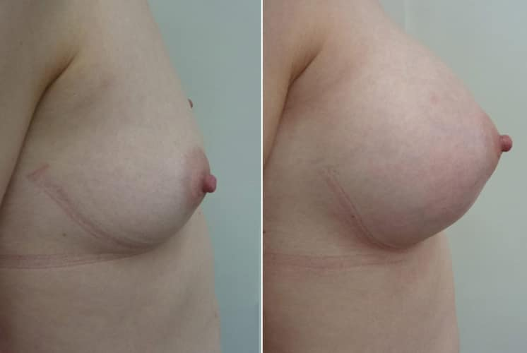 Before and After 320 ml Implants - Right Side