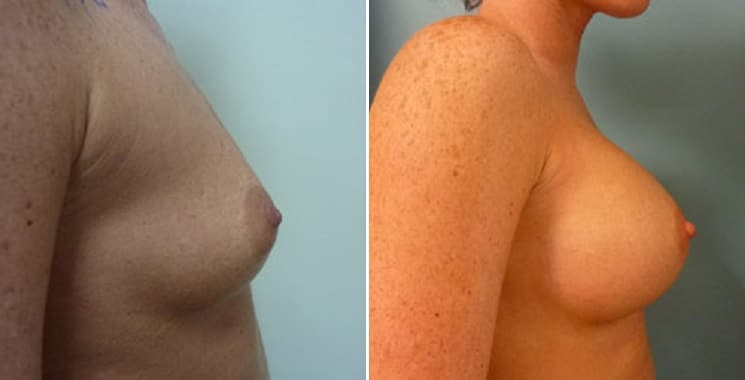Before and After Breast Implants 280 ml Right Side