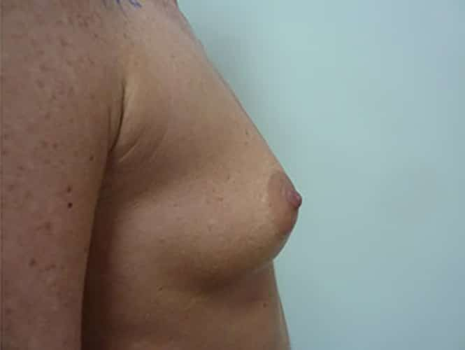 Before 280 ml Implants