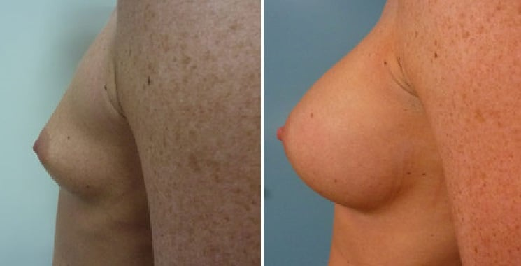 Before and After 280 ml Implants - Left Side