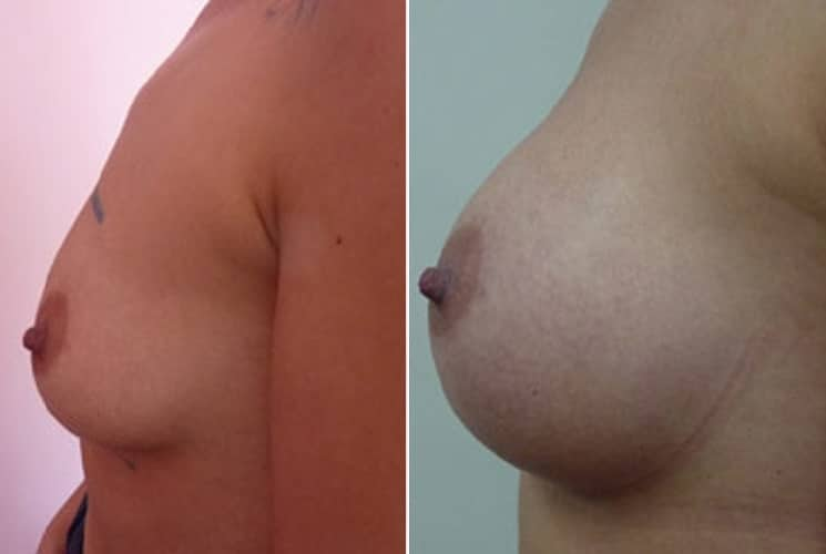 Before and After 300 ml Implants - Left Side