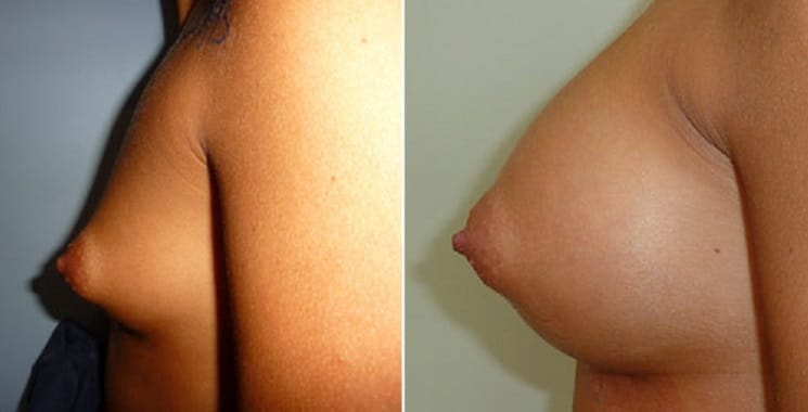 Before and After 330 ml Implants - Left Side