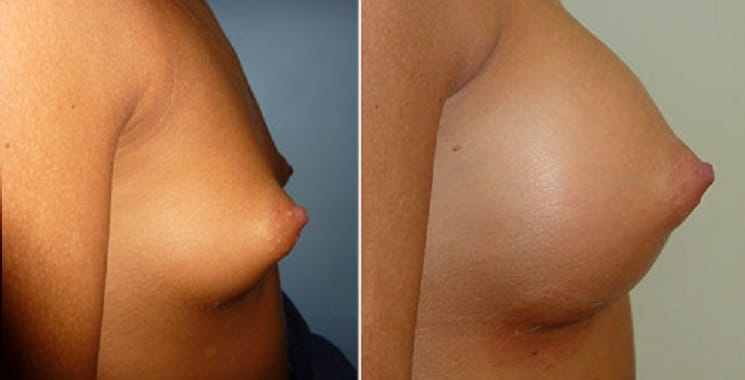 Before and After 330 ml Implants - Right Side