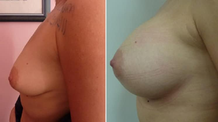 Before and After 350 ml Breast Implants Left Side