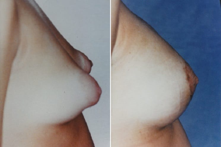 Before and After 300 ml Implants Tuberous Breasts