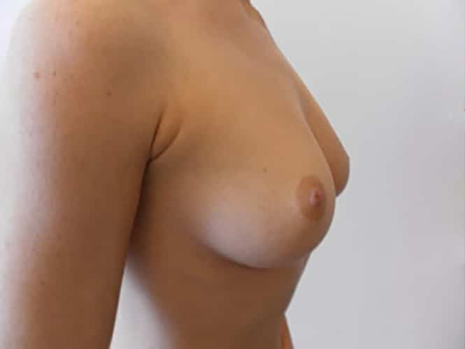 Before 280 ml Breast Implants Right Side