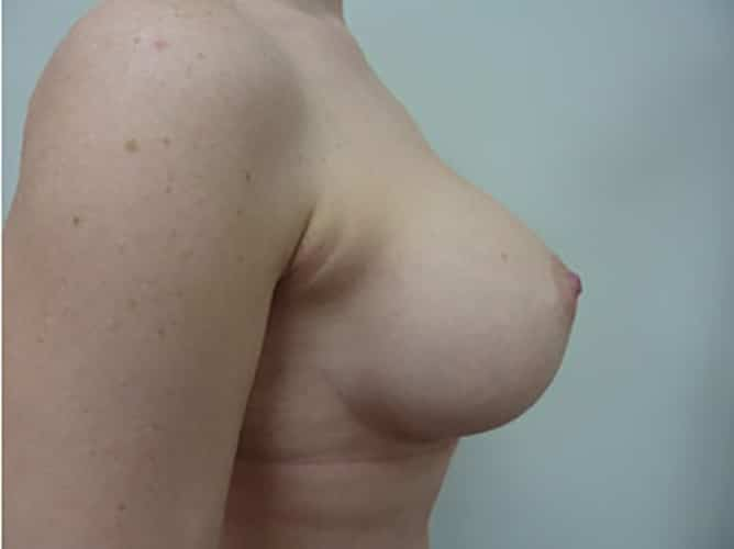 After 280 ml Implants