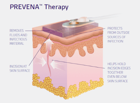 Prevena Diagram