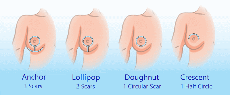 Diagram of Breast Lift Incision Types - Mastopexy